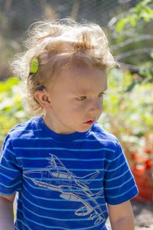 Four-year-old William was born profoundly deaf, but is learning to speak with the aid of cochlear implants, as well as using sign language. He is taking part in a UC Davis study on how the brain adapts to cochlear implants.