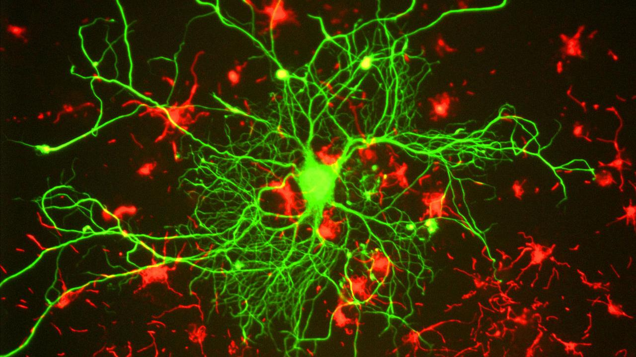 Researchers hope to gain a better visual perspective of the molecular mechanisms of the brain's continual rearrangement of neuronal connections, known collectively as brain plasticity. Gerry Shaw