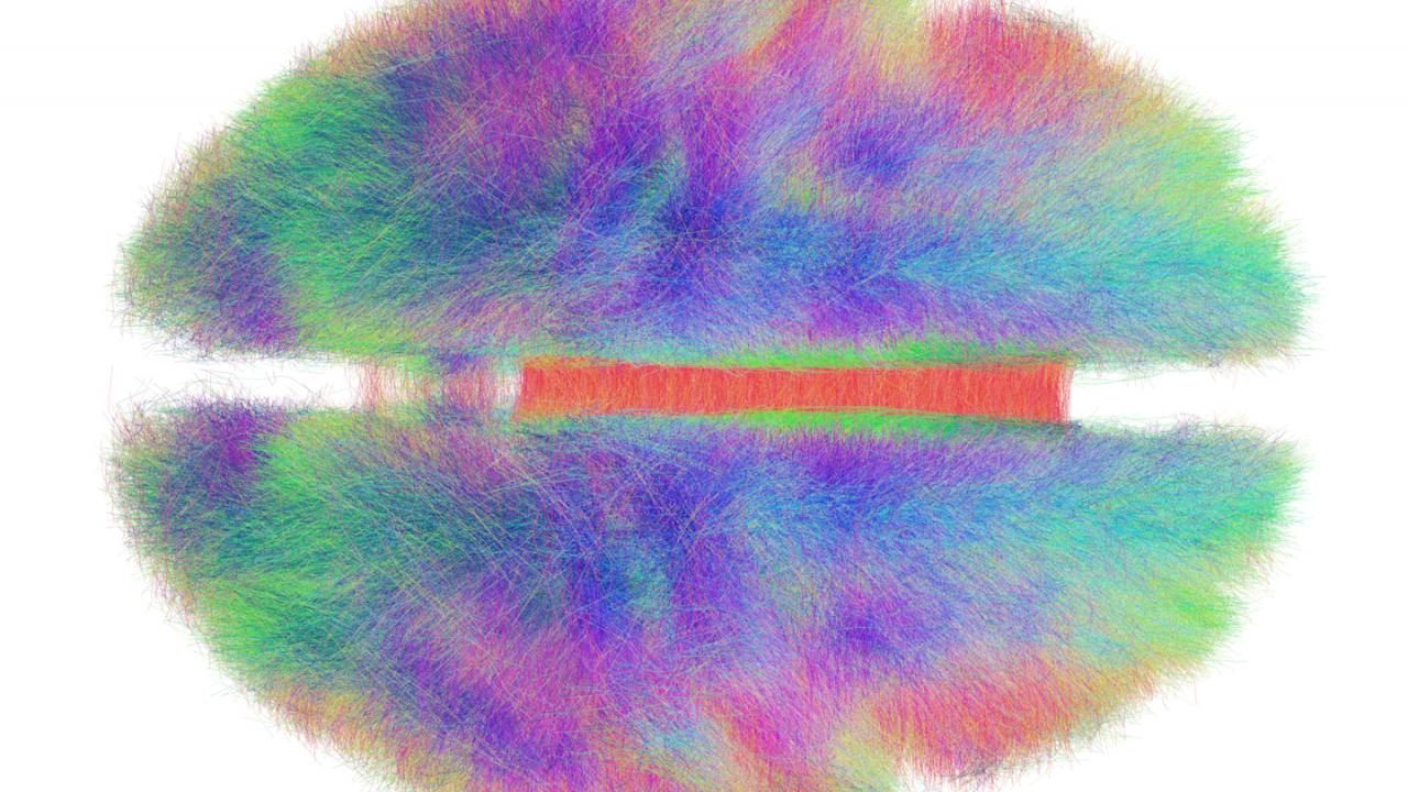 Big data visualization techniques like this connectome—a computer-generated map of the brain pathways of 20 humans—inform neuroscience and help create models of complex biological systems. Andreas Horn/Max Planck Institute for Human Development